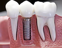 Dental Implant Dentistry